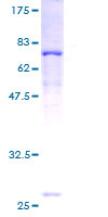 SDS-PAGE - ACADL protein (ab114591)