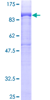SDS-PAGE - DGKA protein (ab114613)