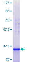 SDS-PAGE - DDX3 protein (ab114616)
