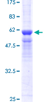 SDS-PAGE - PPP4C protein (ab114692)
