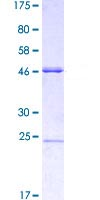 SDS-PAGE - Msx2/Hox8 protein (ab114704)