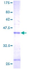 SDS-PAGE - Microsomal Glutathione S-transferase 1 protein (ab114792)