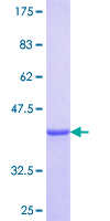 SDS-PAGE - KRT34 protein (ab114955)