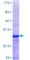 SDS-PAGE - Huntingtin Interacting Protein HIP1 (ab114964)