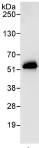 Immunoprecipitation - Anti-RBM17 antibody (ab114968)