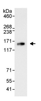Immunoprecipitation - Anti-SAP130 antibody (ab114978)