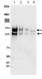 Western blot - Anti-c-Kit antibody (ab114992)
