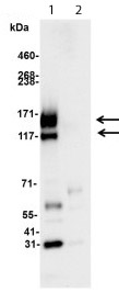 Immunoprecipitation - Anti-c-Kit antibody (ab114992)