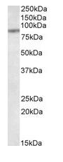 Western blot - Anti-TAP1 antibody (ab115014)