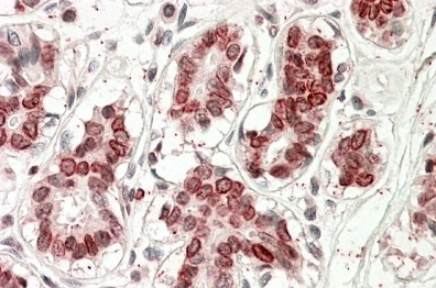 Immunohistochemistry (Formalin/PFA-fixed paraffin-embedded sections) - Anti-UBASH3A antibody (ab115033)