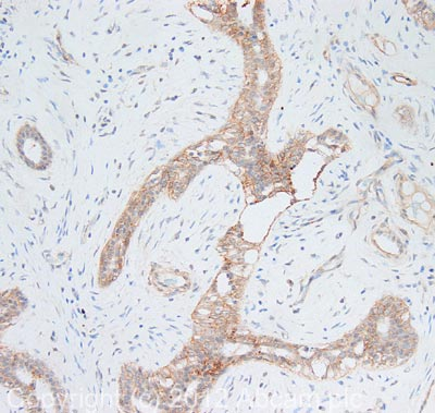Immunohistochemistry (Formalin/PFA-fixed paraffin-embedded sections) - Anti-Integrin beta 1 antibody (ab115146)