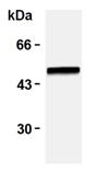 Western blot - Anti-Vimentin (phospho S38) antibody [TM38] (ab115150)