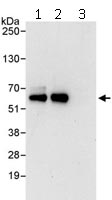 Immunoprecipitation - Anti-Cdk8 antibody (ab115155)