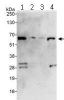 Western blot - DDX56 antibody (ab115158)