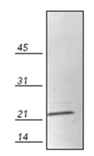 Western blot - Anti-Bcl-2 antibody (ab115162)