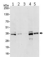 Western blot - BRCC36 antibody (ab115172)