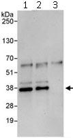 Immunoprecipitation - BRCC36 antibody (ab115172)