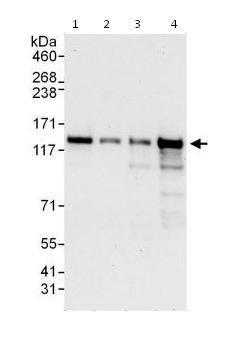 Western blot - Anti-ZNF280D antibody (ab115174)