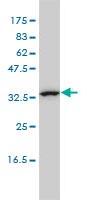 Western blot - Anti-CAB39L antibody [3B11-1A4] (ab115186)