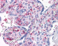 Immunohistochemistry (Formalin/PFA-fixed paraffin-embedded sections) - Anti-CAB39L antibody [3B11-1A4] (ab115186)