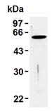 Western blot - Anti-Vimentin (phospho S71) antibody [TM71] (ab115189)