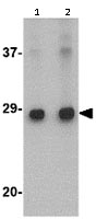 Western blot - Anti-ELOVL6 antibody (ab115194)
