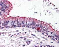 Immunohistochemistry (Formalin/PFA-fixed paraffin-embedded sections) - Anti-ELOVL6 antibody (ab115194)