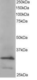 Western blot - Anti-ARPC2 antibody (ab115200)