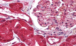 Immunohistochemistry (Formalin/PFA-fixed paraffin-embedded sections) - Anti-FAIM3 antibody (ab115211)