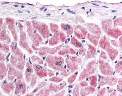 Immunohistochemistry (Formalin/PFA-fixed paraffin-embedded sections) - Anti-Frizzled 7 antibody (ab115214)