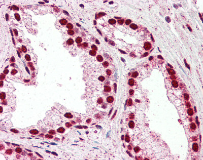 Immunohistochemistry (Formalin/PFA-fixed paraffin-embedded sections) - Anti-IRF6 antibody (ab115220)