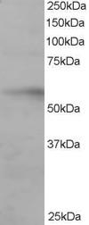 Western blot - Anti-IRF6 antibody (ab115220)