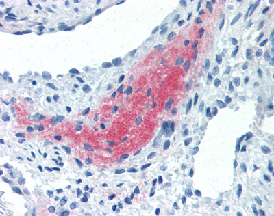 Immunohistochemistry (Formalin/PFA-fixed paraffin-embedded sections) - LEFTY2 antibody [7C5G1H6H10] (ab115224)