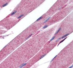 Immunohistochemistry (Formalin/PFA-fixed paraffin-embedded sections) - Anti-KALRN antibody (ab115235)