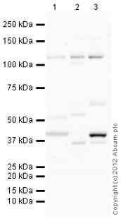 Western blot - Anti-BMPR2 antibody (ab115239)