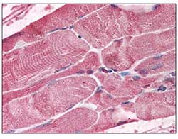 Immunohistochemistry (Formalin/PFA-fixed paraffin-embedded sections) - Anti-Bmi1 antibody (ab115251)