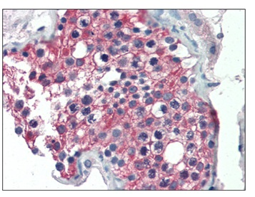 Immunohistochemistry (Formalin/PFA-fixed paraffin-embedded sections) - Anti-ALDH1A1 antibody (ab115252)