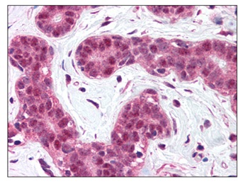 Immunohistochemistry (Formalin/PFA-fixed paraffin-embedded sections) - Anti-Bcl10 antibody (ab115254)