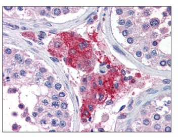 Immunohistochemistry (Formalin/PFA-fixed paraffin-embedded sections) - Anti-ACYP1 antibody (ab115255)