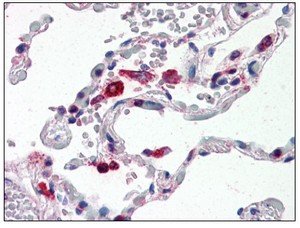 Immunohistochemistry (Formalin/PFA-fixed paraffin-embedded sections) - Anti-Cathepsin S antibody (ab115259)