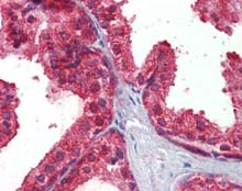 Immunohistochemistry (Formalin/PFA-fixed paraffin-embedded sections) - Anti-CLIP170 antibody (ab115274)