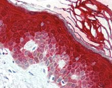 Immunohistochemistry (Formalin/PFA-fixed paraffin-embedded sections) - Anti-Caspase-14 antibody (ab115275)