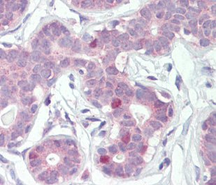 Immunohistochemistry (Formalin/PFA-fixed paraffin-embedded sections) - Anti-FOXA1 antibody (ab115279)