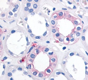 Immunohistochemistry (Formalin/PFA-fixed paraffin-embedded sections) - Anti-EPHX2 antibody (ab115284)