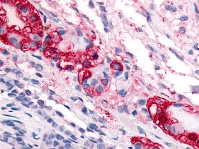 Immunohistochemistry (Formalin/PFA-fixed paraffin-embedded sections) - Anti-CRF1 antibody (ab115286)