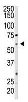 Western blot - Anti-CD73 antibody (ab115289)