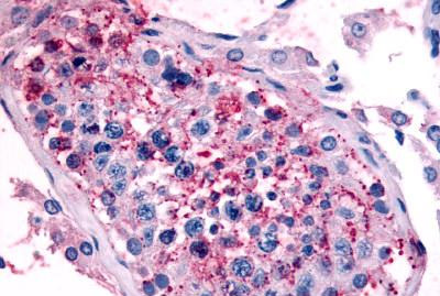 Immunohistochemistry (Formalin/PFA-fixed paraffin-embedded sections) - Anti-5HT1E Receptor antibody (ab115294)