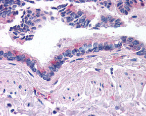 Immunohistochemistry (Formalin/PFA-fixed paraffin-embedded sections) - Anti-BMP5 antibody (ab115310)