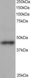 Western blot - Anti-ACTR1B antibody (ab115323)