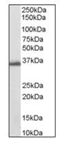 Western blot - Anti-AKR1C3 antibody (ab115326)